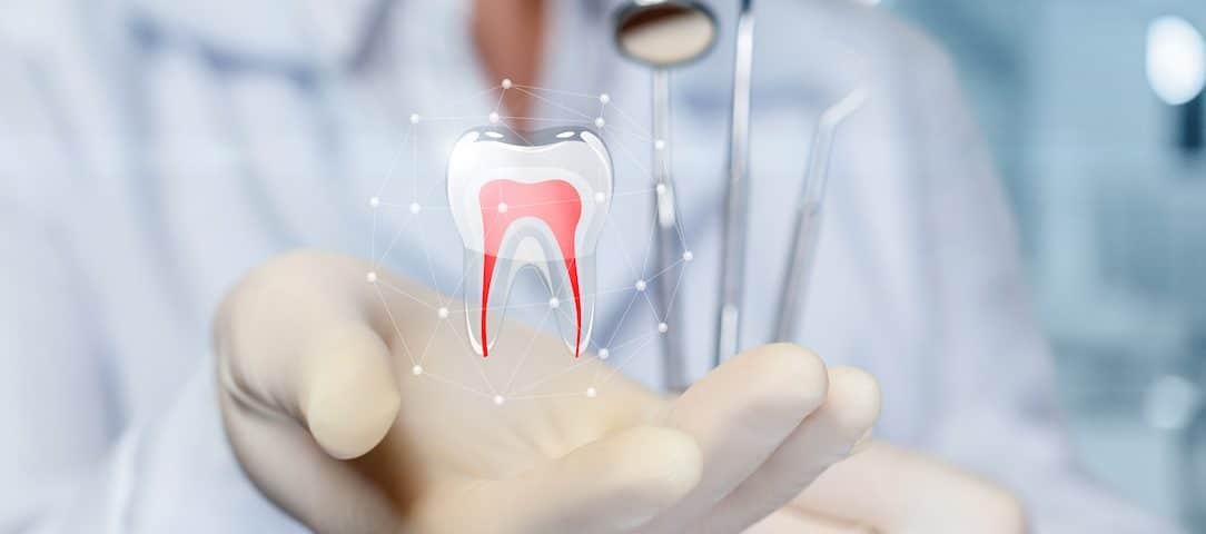 411 on root canals