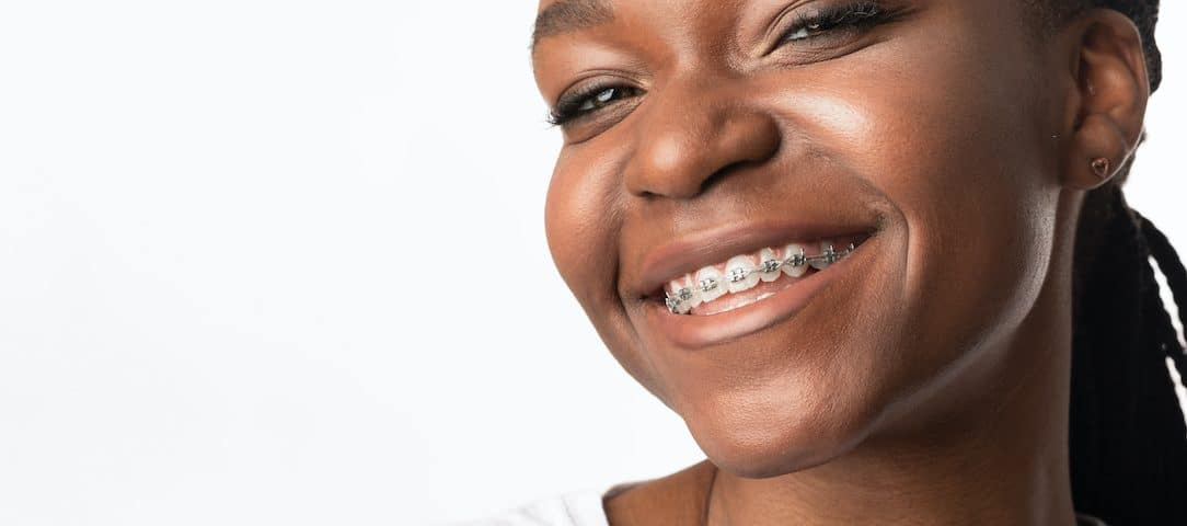 5-signs-you-might-need-braces