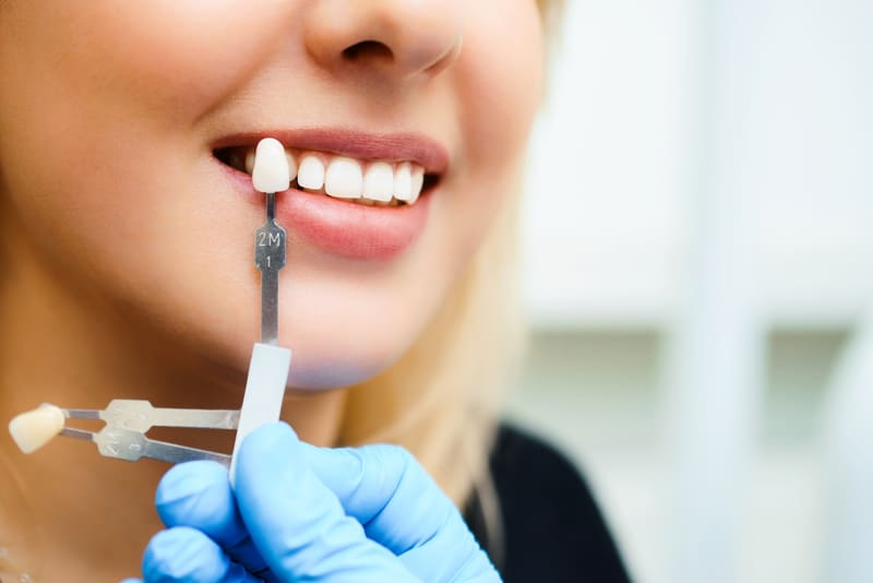 Dentist matching a crown to the tooth color of a female dental patient