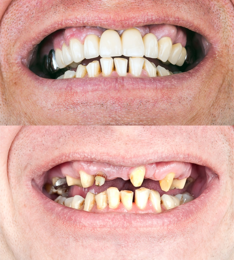 Two before and after photos of bad teeth and fully restored teeth after full mouth restoration treatment