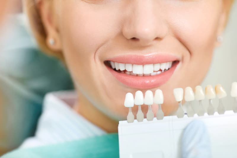 Woman sitting in dental chair selecting the shade of teeth she wants for her teeth whitening treatment.