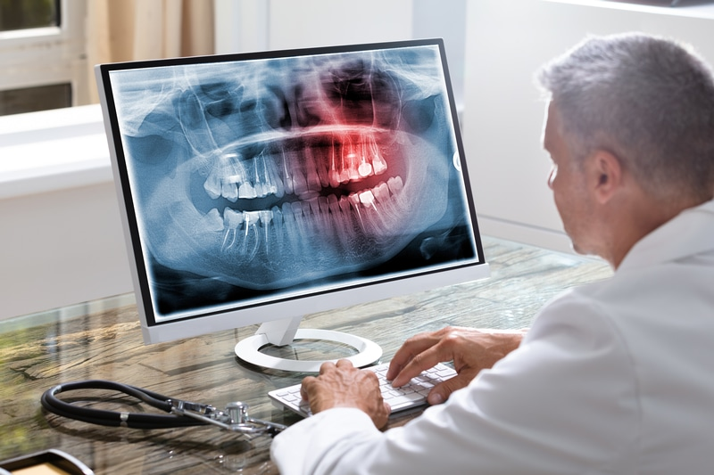 Male dentist looking at dental X-rays on a computer monitor.
