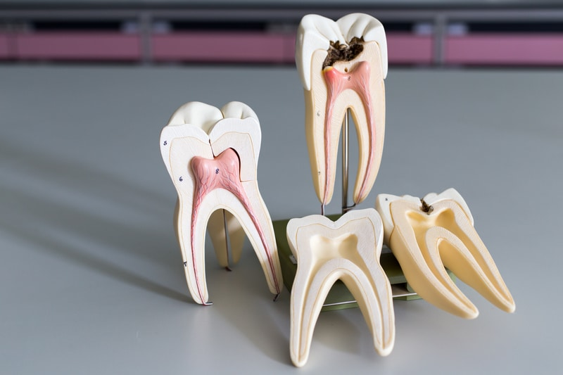 Picture of the insides of four teeth models to see a healthy vs. infected tooth