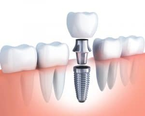 Animated model of the three parts of a dental implant.
