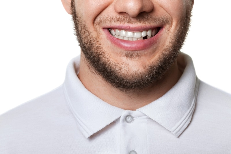 Young man smiling with one tooth missing.