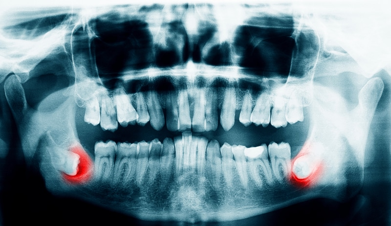X-ray scan of teeth with wisdom teeth highlighted in red