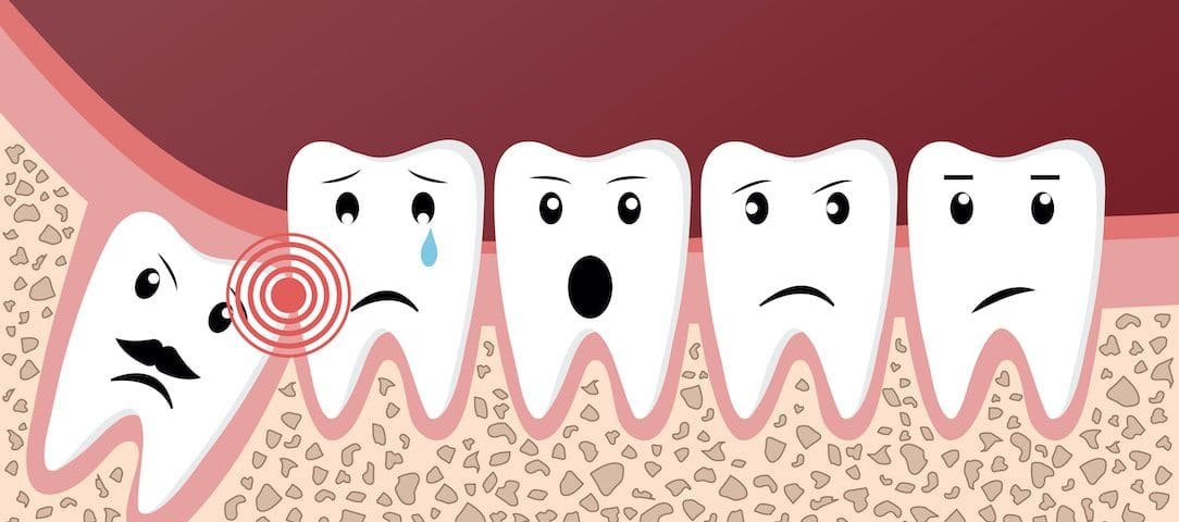 caring-for-your-mouth-after-wisdom-teeth-removal