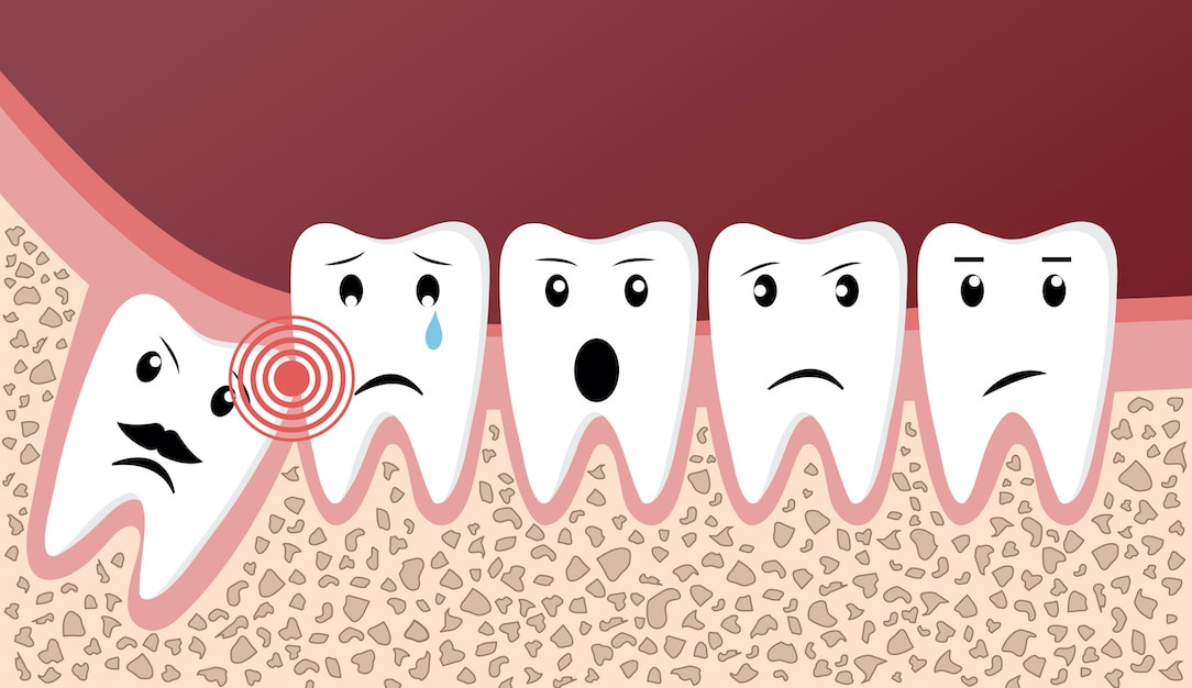 Caring For Your Mouth After Wisdom Teeth Removal