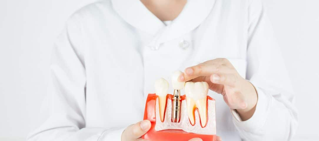 do-dental-implants-replace-missing-teeth