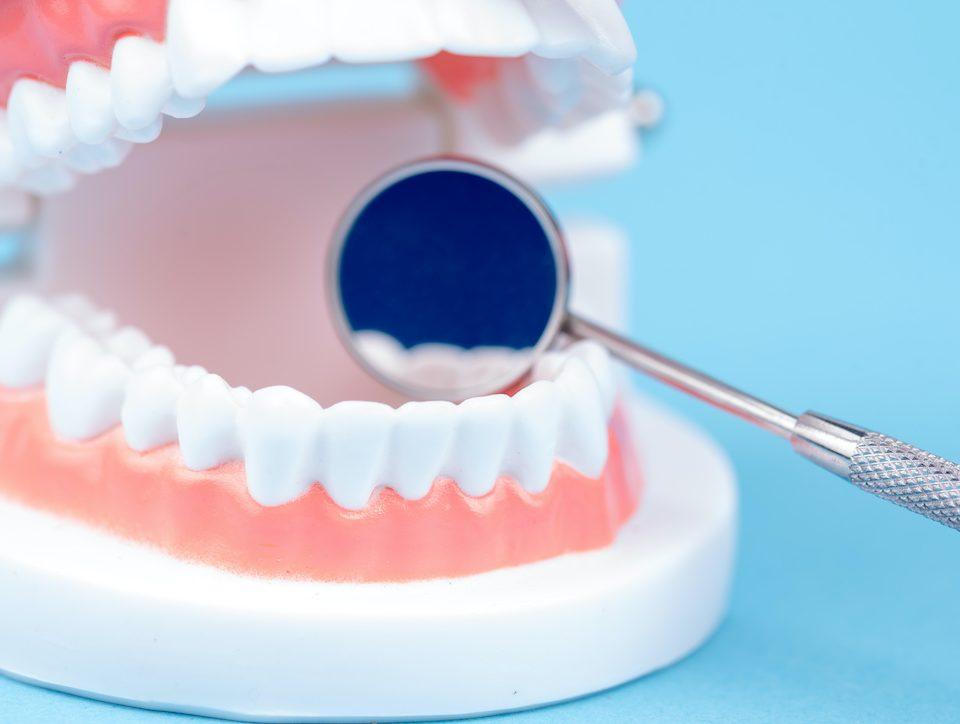 do-healthy-people-need-dental-checkups