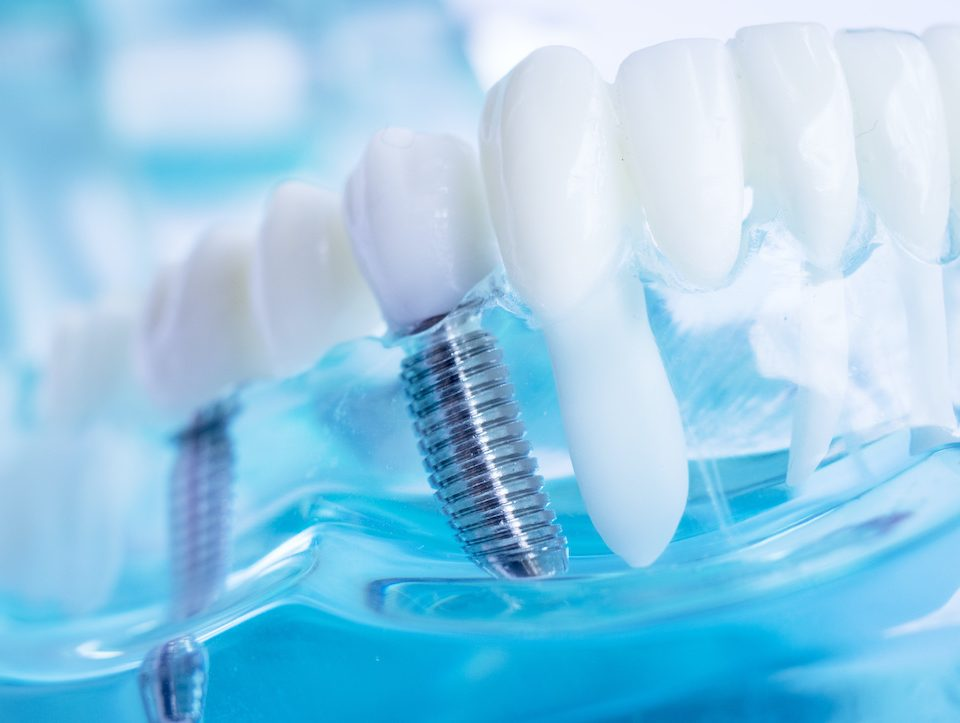 is-it-time-for-dental-implants