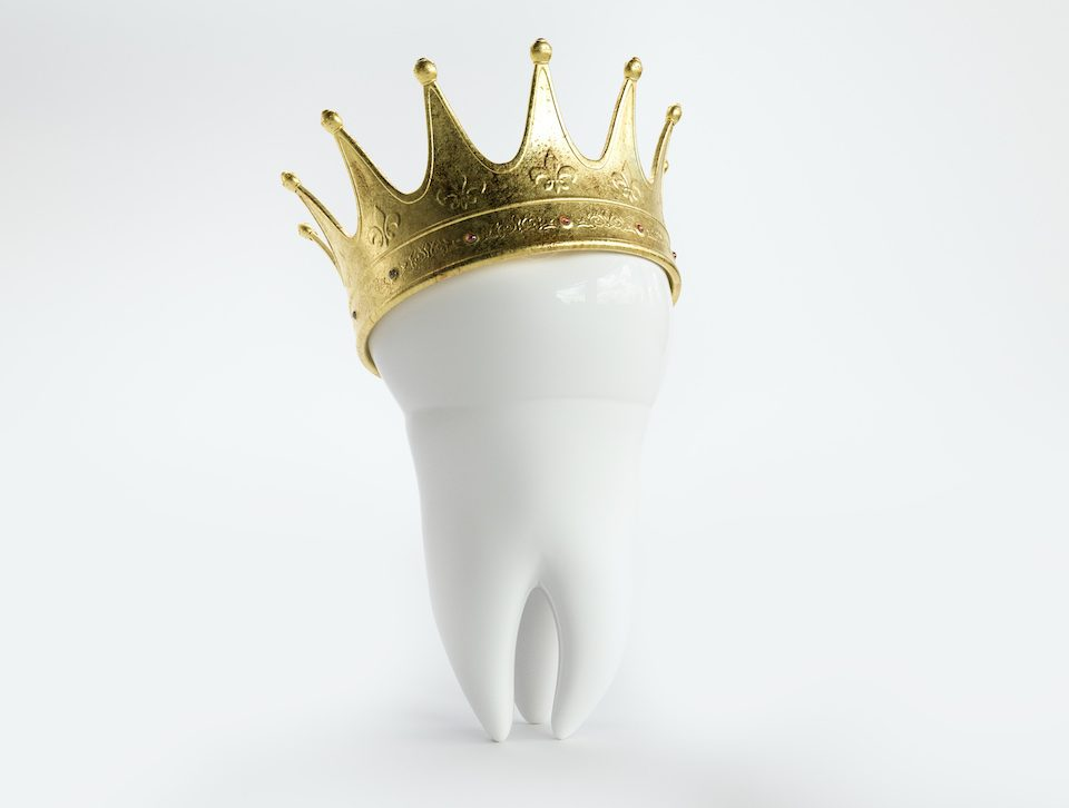 put-a-cap-on-it-with-same-day-dental-crowns