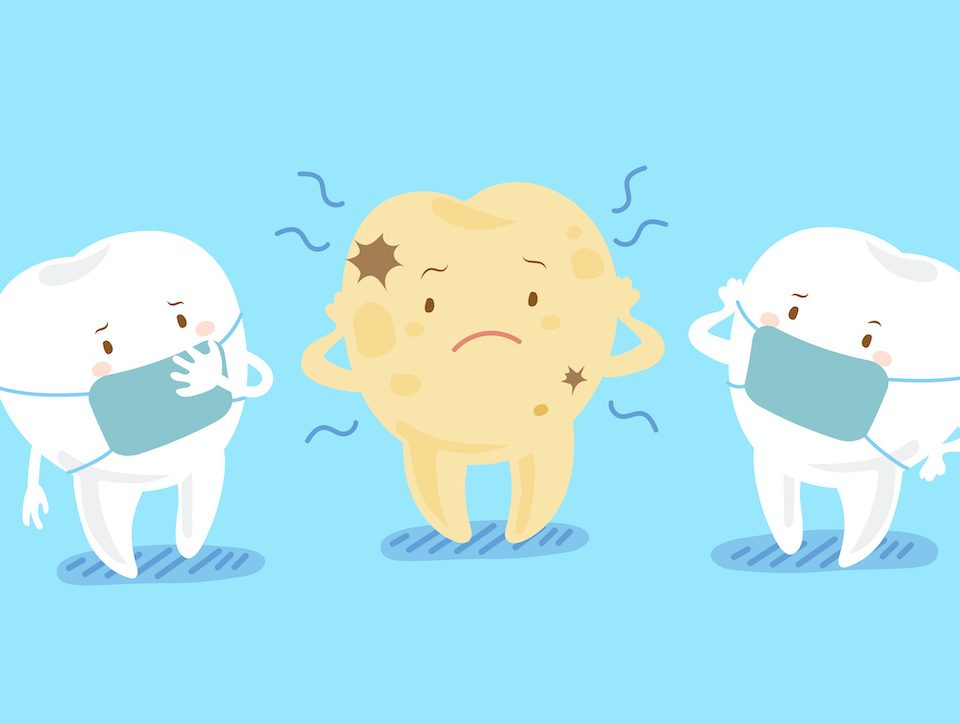 understanding-how-tooth-decay-destroys-your-tooth