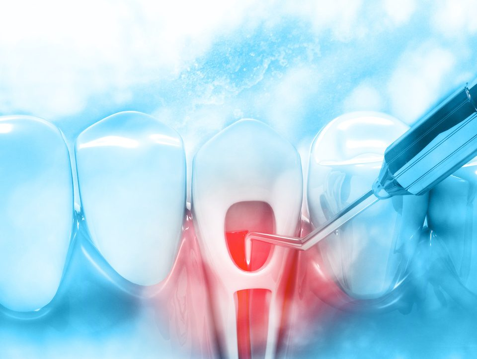 what-is-root-canal-therapy